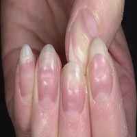 The Nails Can Tell You Warning Signs About Your Health!
