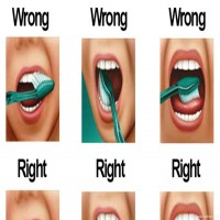 Brushing Your Teeth - Dental Studies  ,