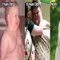 He Weighed 707 Pounds at Age 15 - Wait Until You See Him Today