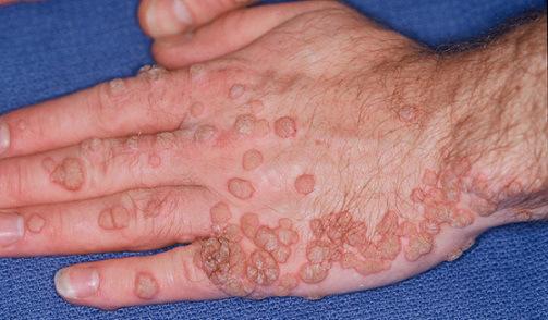 papilloma virus in human