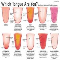 The Human Tongue Can Help Out And Tell A Lot About Your Health