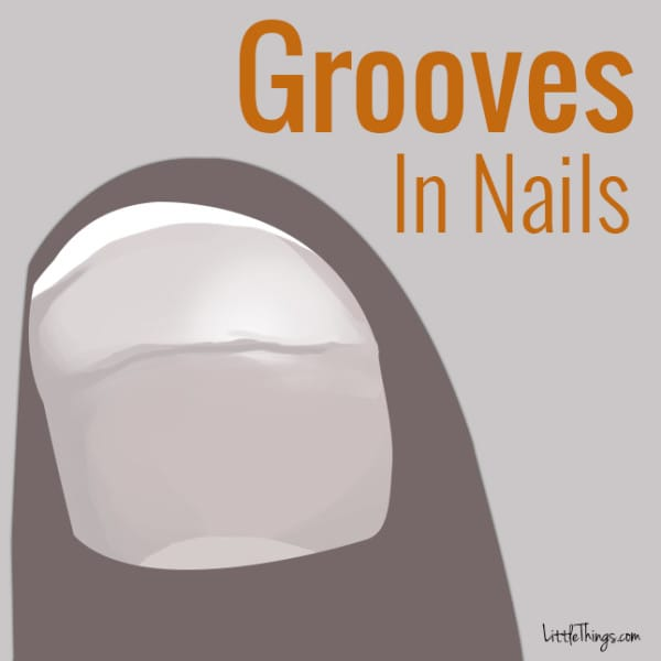 Grooves In Nails