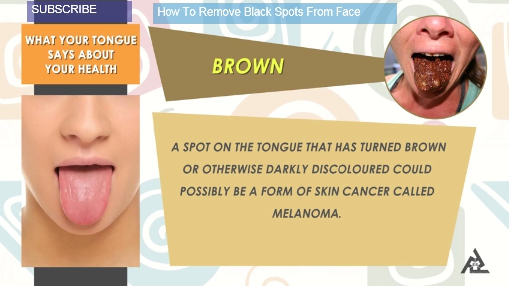 Brown Tongue: